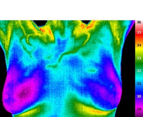 Clinical Breast Thermography will be back in Queen